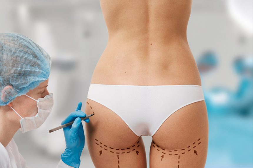 Emsculpt® vs Brazilian Butt Lift