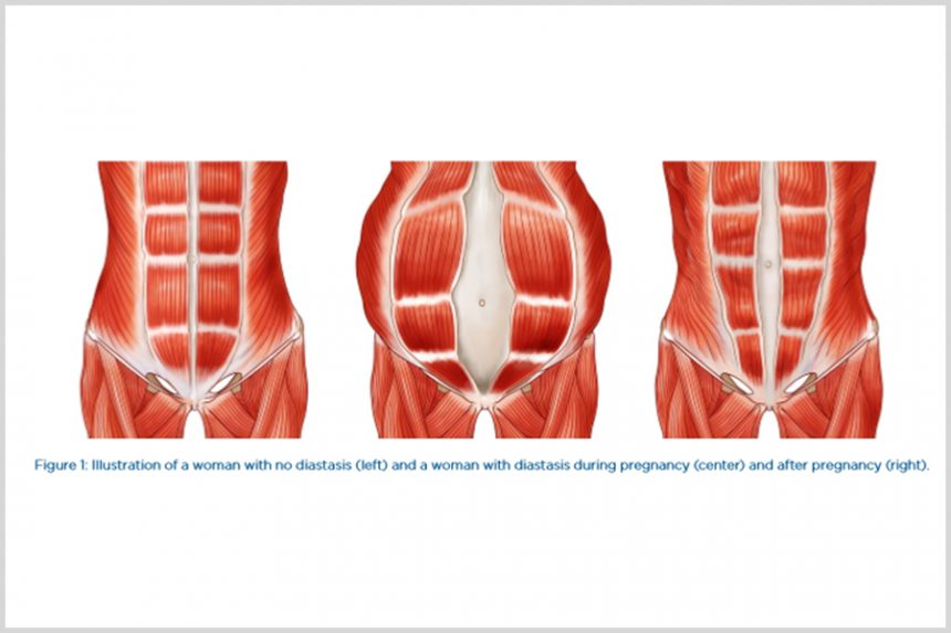 Diastasis Recti in Women